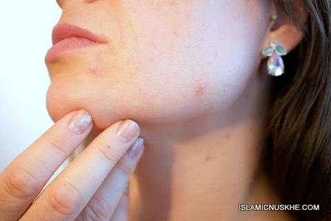 Dua or Wazifa to Help Cure My Acne Problem